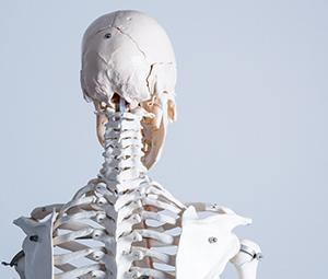 福岡交通事故治療、頚椎捻挫・頚椎損傷画像